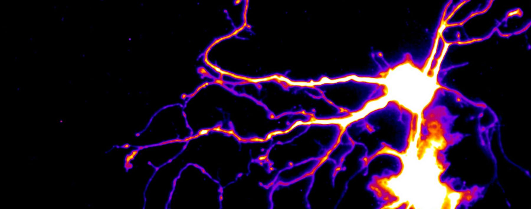 A neuron and glia expressing a photo-convertible protein, Dendra2.